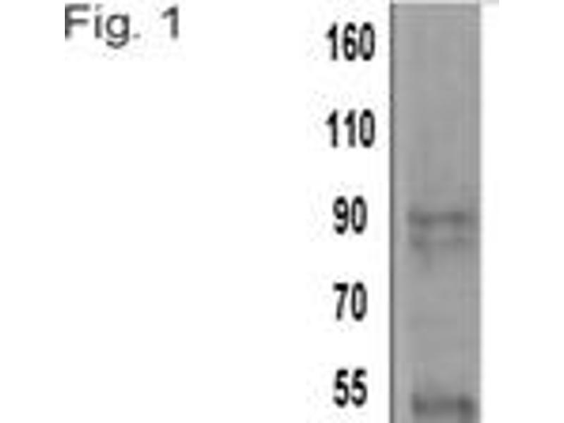 Western Blotting (WB) image for anti-Actinin, alpha 4 (ACTN4) antibody (ABIN261463)