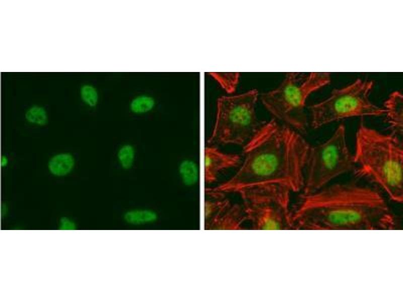 Immunofluorescence (IF) image for anti-E2F Transcription Factor 1 (E2F1) antibody (ABIN269710)