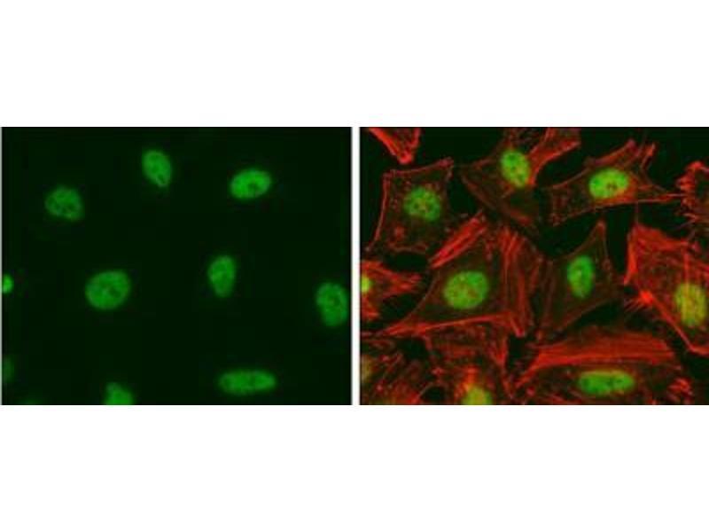 Immunofluorescence (IF) image for anti-E2F Transcription Factor 1 (E2F1) antibody (ABIN269710)
