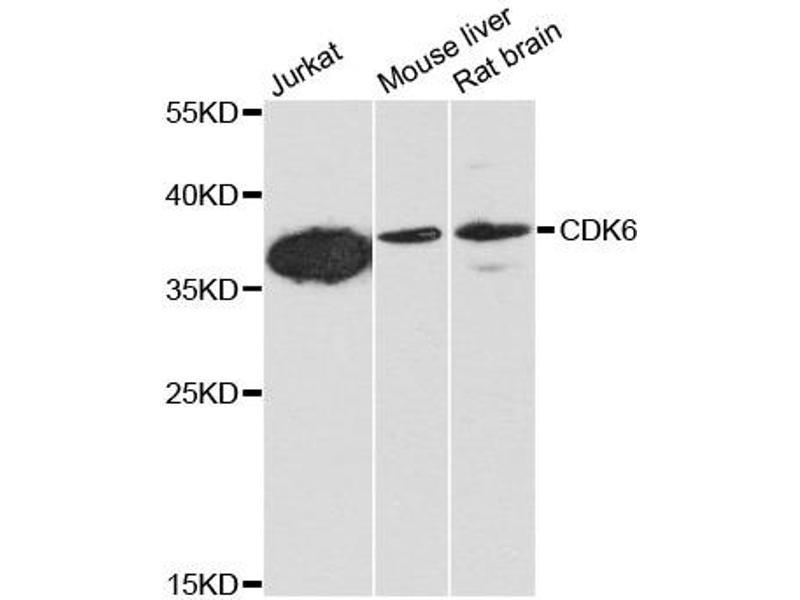 Image no. 2 for anti-Cyclin-Dependent Kinase 6 (CDK6) antibody (ABIN6566654)