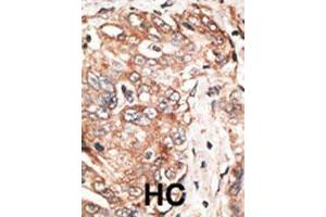 Immunohistochemistry (IHC) image for anti-TPX2 antibody (TPX2, Microtubule-Associated Protein Homolog (Xenopus Laevis)) (AA 350-382) (ABIN388785)