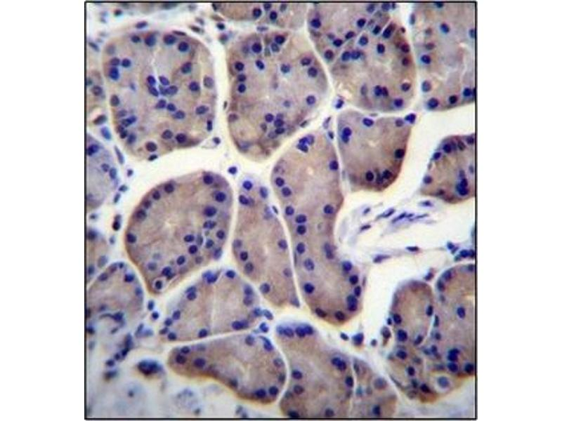 Immunohistochemistry (Paraffin-embedded Sections) (IHC (p)) image for anti-Ribosomal Protein L23 (RPL23) (AA 48-78), (Middle Region) antibody (ABIN954590)