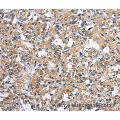 Immunohistochemistry of Human thyroid cancer using PAK2 Polyclonal Antibody at dilution of 1:40