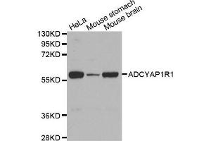 Image no. 1 for anti-Adenylate Cyclase Activating Polypeptide 1 (Pituitary) Receptor Type I (ADCYAP1R1) antibody (ABIN3023490)