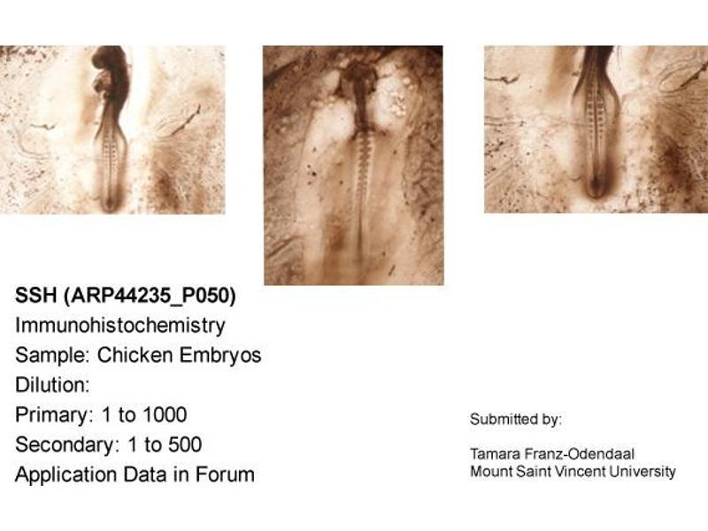 Immunohistochemistry (IHC) image for anti-Sonic Hedgehog antibody (SHH) (N-Term) (ABIN310574)