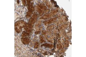 Immunohistochemistry (Paraffin-embedded Sections) (IHC (p)) image for anti-LAMTOR2 Antikörper (Late Endosomal/lysosomal Adaptor, MAPK and MTOR Activator 2) (ABIN4350844)