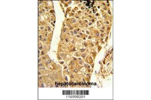 Image no. 1 for anti-Cytochrome P450, Family 2, Subfamily C, Polypeptide 18 (CYP2C18) (AA 448-478), (C-Term) antibody (ABIN652672)