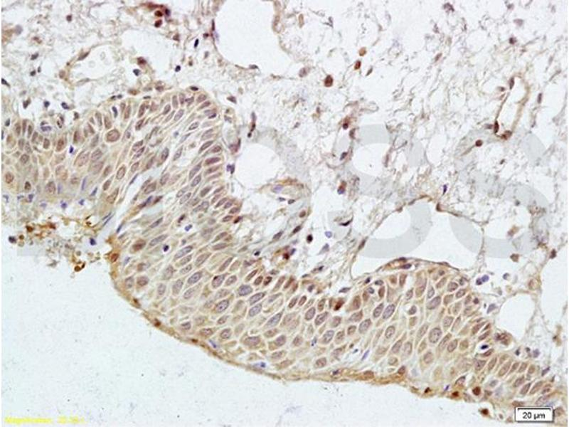 Immunohistochemistry (IHC) image for anti-Par-3 Partitioning Defective 3 Homolog (C. Elegans) (PARD3) antibody (ABIN681718)