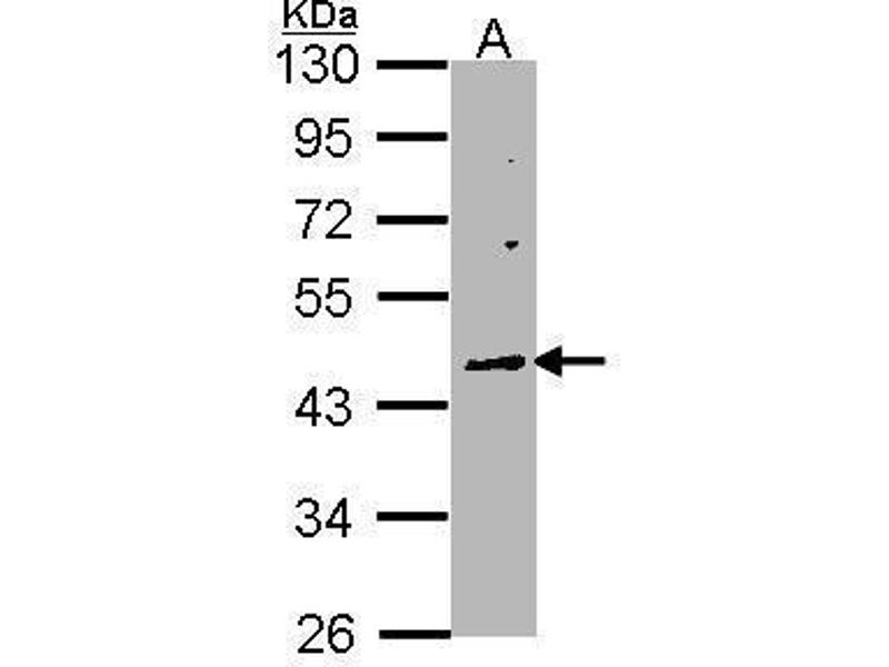 Western Blotting (WB) image for anti-WNT10A antibody (Wingless-Type MMTV Integration Site Family, Member 10A) (Center) (ABIN2856795)