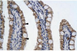 Image no. 3 for anti-Paired-Like Homeodomain 2 (PITX2) (N-Term) antibody (ABIN2776373)