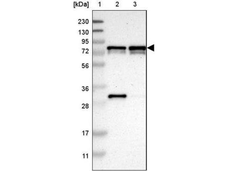 Western Blotting (WB) image for anti-Metadherin (MTDH) antibody (ABIN4332035)