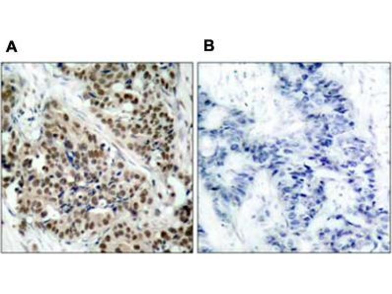 Image no. 2 for anti-Forkhead Box O1 (FOXO1) antibody (ABIN539166)