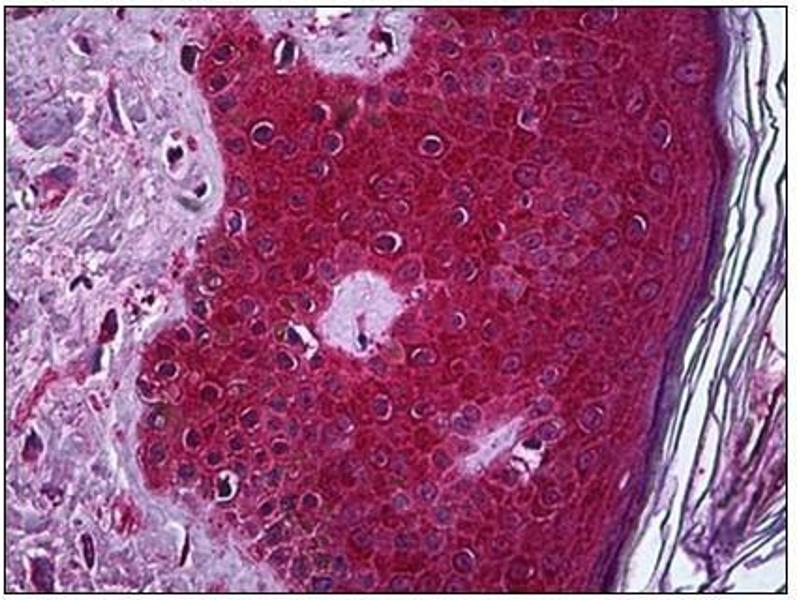 Immunohistochemistry (IHC) image for anti-Tumor Necrosis Factor (TNF) (AA 1-234) antibody (ABIN782382)