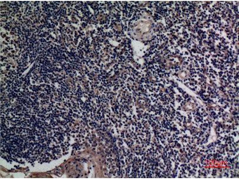 Immunohistochemistry (IHC) image for anti-Tumor Necrosis Factor (Ligand) Superfamily, Member 13b (TNFSF13B) (Internal Region) antibody (ABIN3187708)