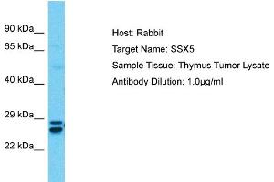 Image no. 1 for anti-Synovial Sarcoma, X Breakpoint 5 (SSX5) (C-Term) antibody (ABIN2780700)
