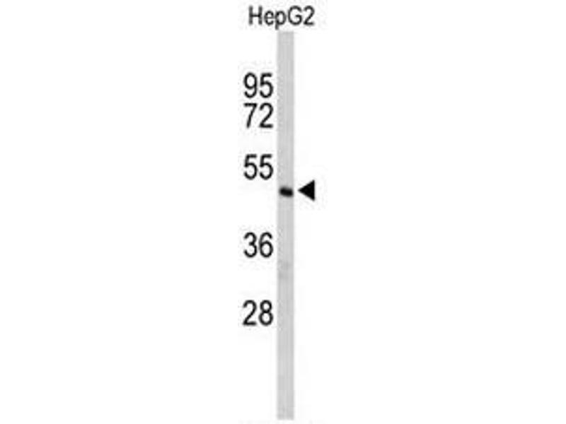 Western Blotting (WB) image for anti-CFLAR antibody (CASP8 and FADD-Like Apoptosis Regulator) (AA 152-182) (ABIN951489)