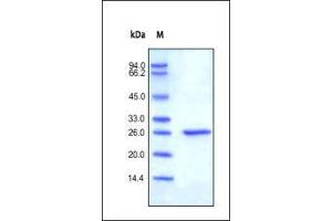 SDS-PAGE (SDS) image for C-Reactive Protein (CRP) (AA 17-224) (Active) protein (His tag) (ABIN2487343)