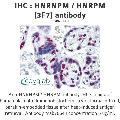 anti-Heterogeneous Nuclear Ribonucleoprotein M (HNRNPM) (AA 17-113) antibody