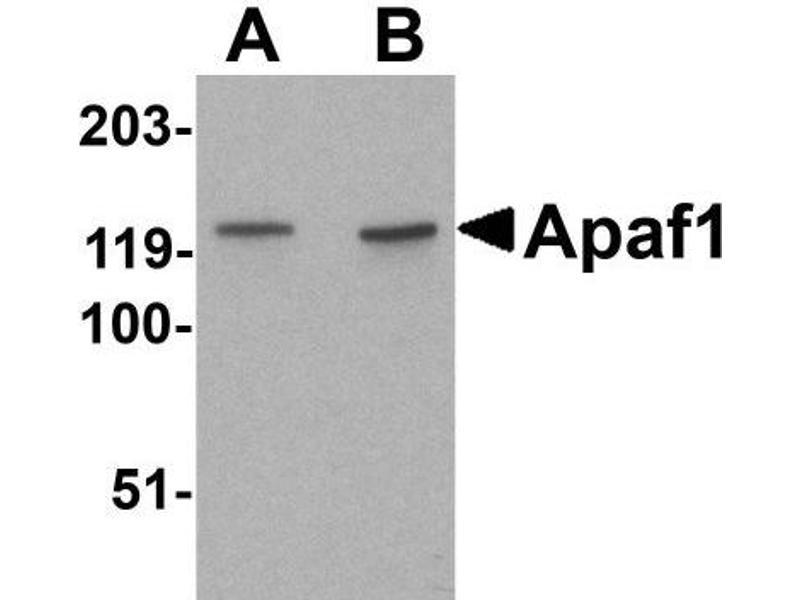 Western Blotting (WB) image for anti-Apoptotic Peptidase Activating Factor 1 (APAF1) antibody (ABIN4280961)