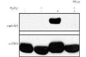 Western Blotting (WB) image for anti-CAMP Responsive Element Binding Protein 1 (CREB1) (pSer121) antibody (ABIN251568)