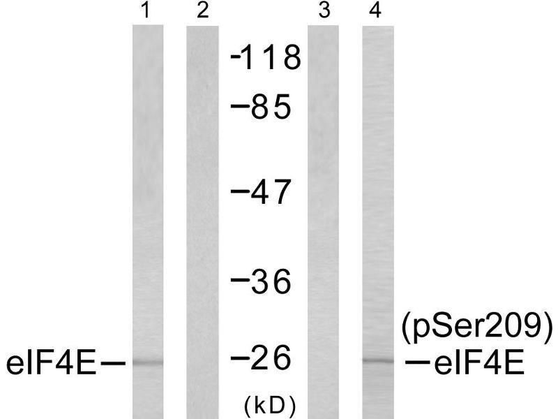 Image no. 2 for anti-Eukaryotic Translation Initiation Factor 4E (EIF4E) (pSer209) antibody (ABIN1576237)