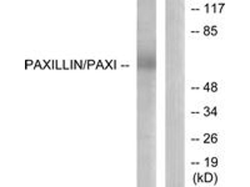 Western Blotting (WB) image for anti-Paxillin (PXN) (AA 85-134) antibody (ABIN1532978)