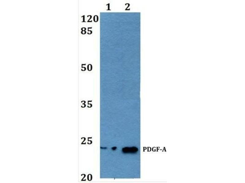 Western Blotting (WB) image for anti-PDGFA antibody (Platelet-Derived Growth Factor alpha Polypeptide) (ABIN446973)
