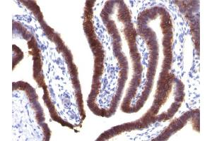 Image no. 4 for anti-Epithelial Cell Adhesion Molecule (EPCAM) (AA 77-202), (Extracellular Domain) antibody (ABIN6939978)