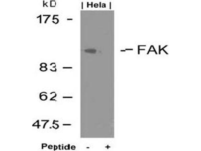 image for anti-FAK antibody (PTK2 Protein tyrosine Kinase 2) (Tyr925) (ABIN197348)