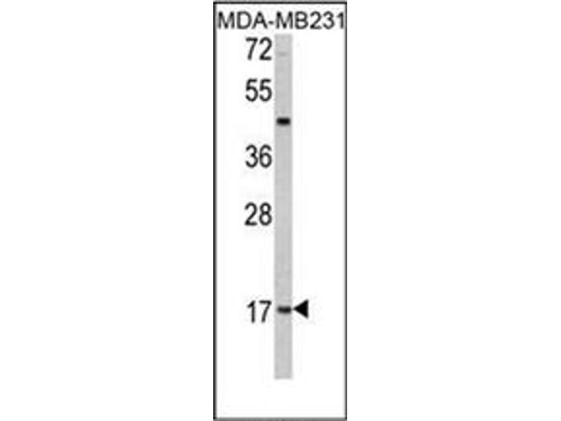 image for anti-Leptin antibody (LEP) (C-Term) (ABIN358628)