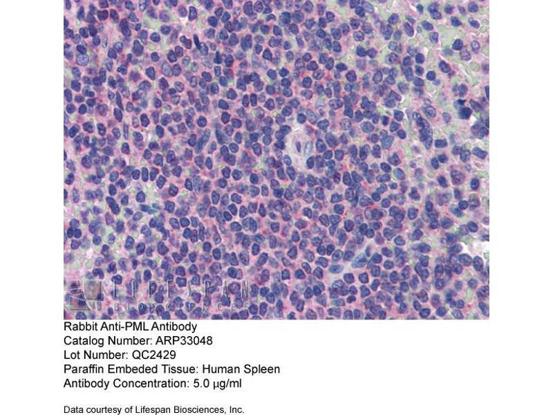 Immunohistochemistry (IHC) image for anti-Promyelocytic Leukemia (PML) (C-Term) antibody (ABIN2777721)