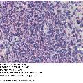 anti-PML antibody (Promyelocytic Leukemia) (C-Term)