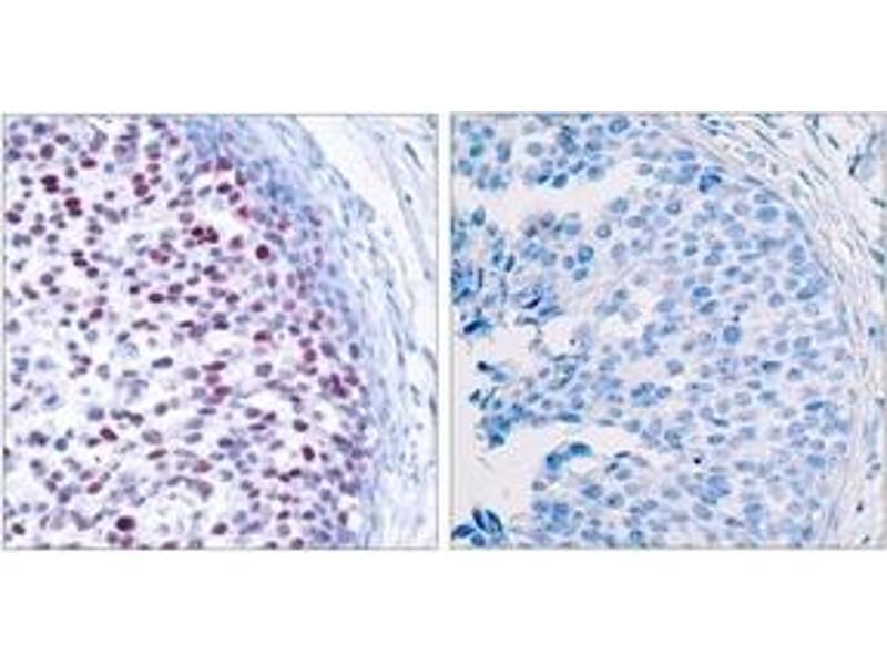 Immunohistochemistry (IHC) image for anti-C-JUN antibody (Jun Proto-Oncogene) (pThr239) (ABIN1531887)