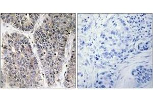 Image no. 2 for anti-Neuroblastoma 1, DAN Family BMP Antagonist (NBL1) (AA 131-180) antibody (ABIN1533727)