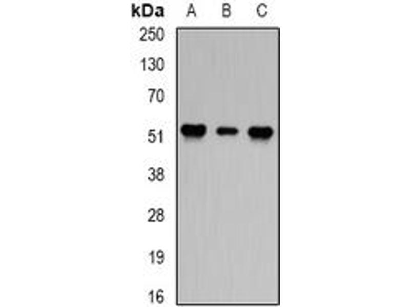 Western Blotting (WB) image for anti-Protein Phosphatase 2 Regulatory Subunit 2A (PPP2R2A) (full length) antibody (ABIN6005000)