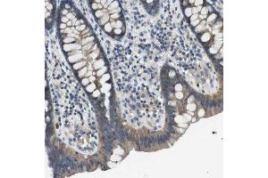 Immunohistochemistry (Paraffin-embedded Sections) (IHC (p)) image for anti-NDRG Family Member 4 (NDRG4) antibody (ABIN4338344)