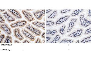 Immunohistochemistry (IHC) image for anti-FZD1 antibody (Frizzled Family Receptor 1) (AA 1-248) (ABIN2000335)