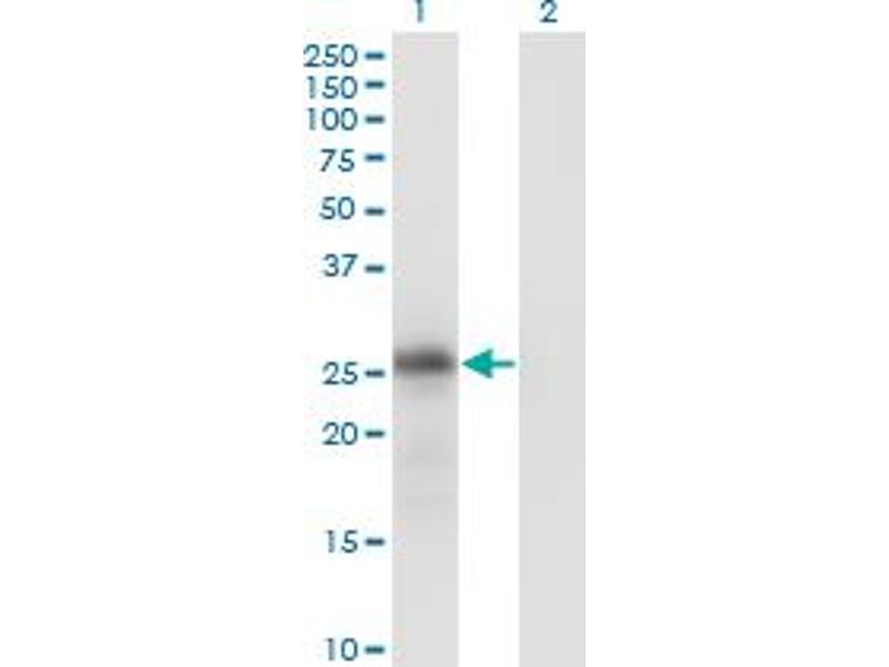 Image no. 2 for anti-Kallikrein 6 (KLK6) (AA 91-190) antibody (ABIN519338)