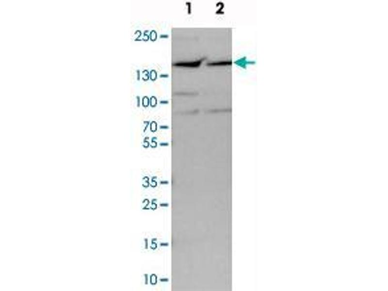 Western Blotting (WB) image for anti-Protein Phosphatase 1, Regulatory Subunit 13B (PPP1R13B) antibody (ABIN5586045)