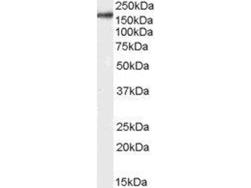 Western Blotting (WB) image for anti-CD11b antibody (Integrin alpha M) (Internal Region) (ABIN2563481)