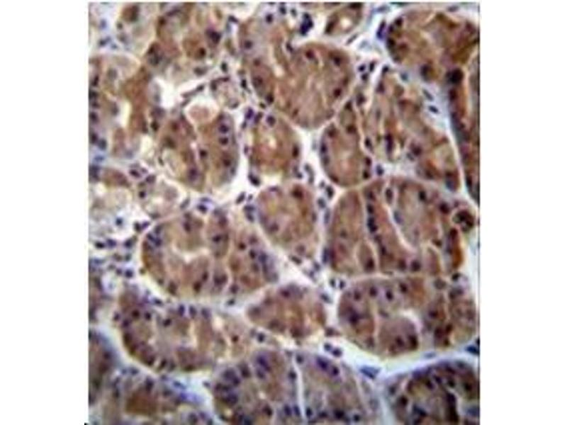 Immunohistochemistry (Paraffin-embedded Sections) (IHC (p)) image for anti-SOCS4 antibody (Suppressor of Cytokine Signaling 4) (AA 234-262) (ABIN954879)