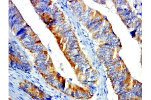 Image no. 1 for anti-G Protein-Coupled Receptor 31 (GPR31) antibody (ABIN1713499)