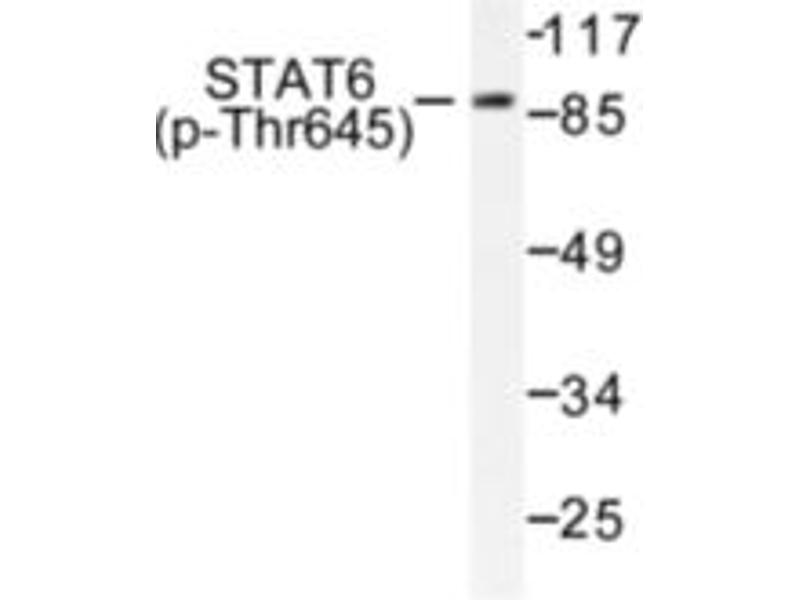 image for anti-Signal Transducer and Activator of Transcription 6, Interleukin-4 Induced (STAT6) (pThr645) antibody (ABIN318132)