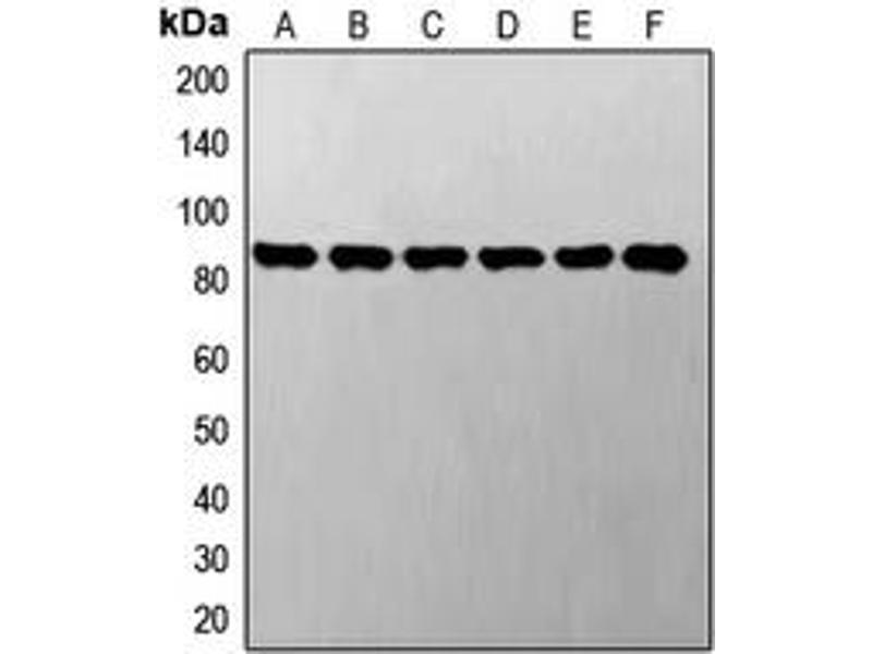Western Blotting (WB) image for anti-Signal Transducer and Activator of Transcription 3 (Acute-Phase Response Factor) (STAT3) antibody (ABIN2970895)