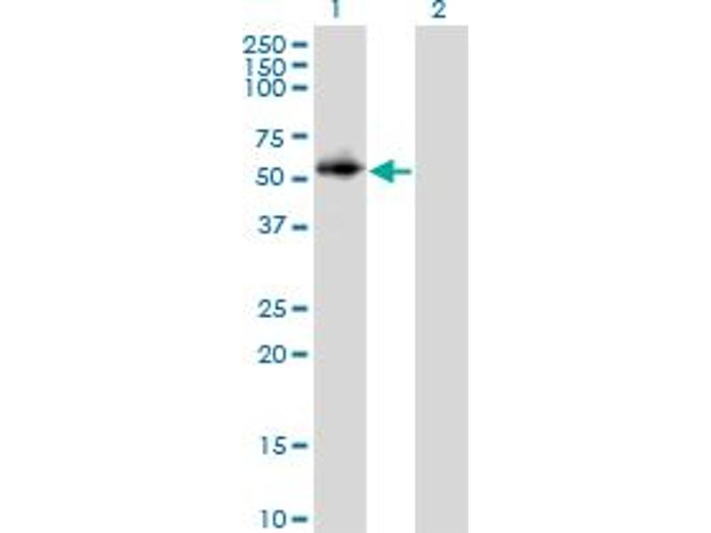 Image no. 2 for anti-Protein Phosphatase 2, Regulatory Subunit B, gamma (PPP2R2C) (AA 1-110) antibody (ABIN562353)