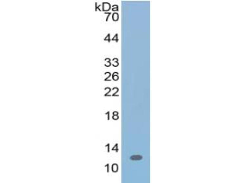 Urocortin 2 (UCN2) ELISA Kit (4)