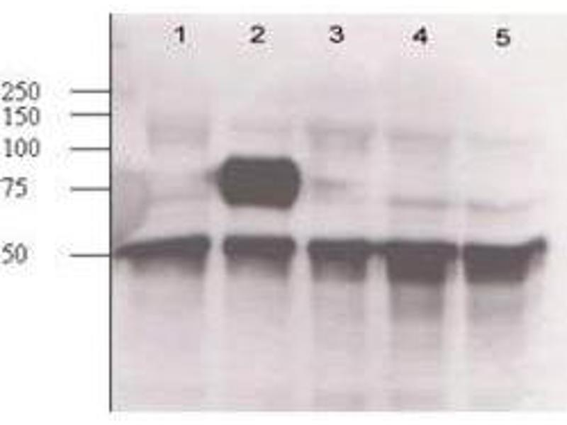 Western Blotting (WB) image for anti-Angiopoietin 2 (ANGPT2) (N-Term) antibody (ABIN95113)