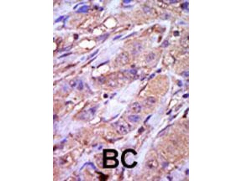 Immunohistochemistry (IHC) image for anti-CK1 epsilon antibody (Casein Kinase 1, epsilon) (AA 331-360) (ABIN391600)