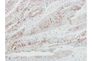Image no. 1 for anti-UDP-N-Acetyl-alpha-D-Galactosamine:polypeptide N-Acetylgalactosaminyltransferase 2 (GalNAc-T2) (GALNT2) (Center) antibody (ABIN2855761)