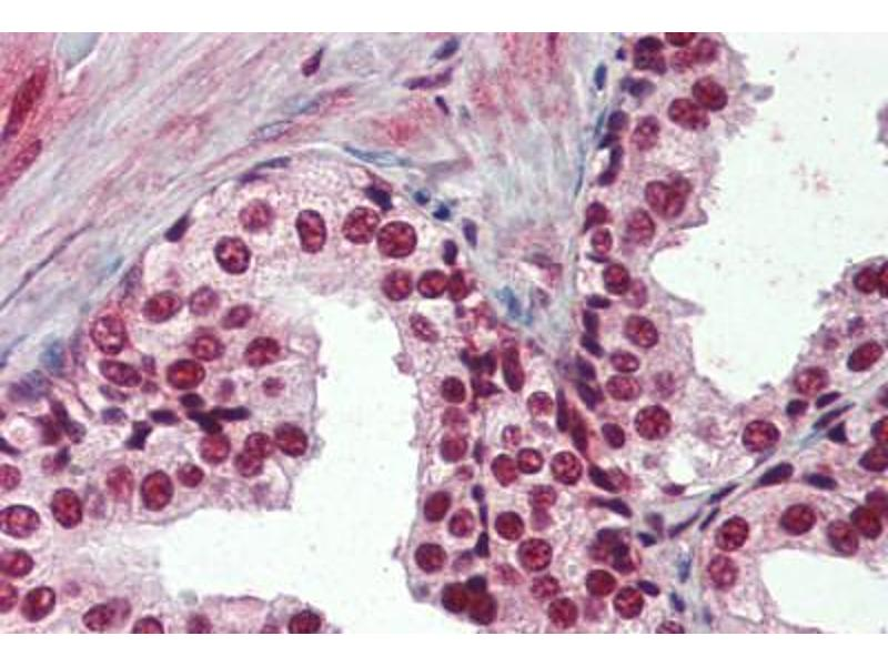 Immunohistochemistry (Paraffin-embedded Sections) (IHC (p)) image for anti-Splicing Factor 1 (SF1) (AA 10-25) antibody (ABIN364486)